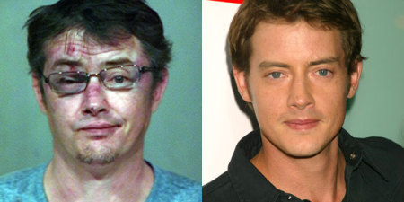 Ego celebrity pics before and after drugs