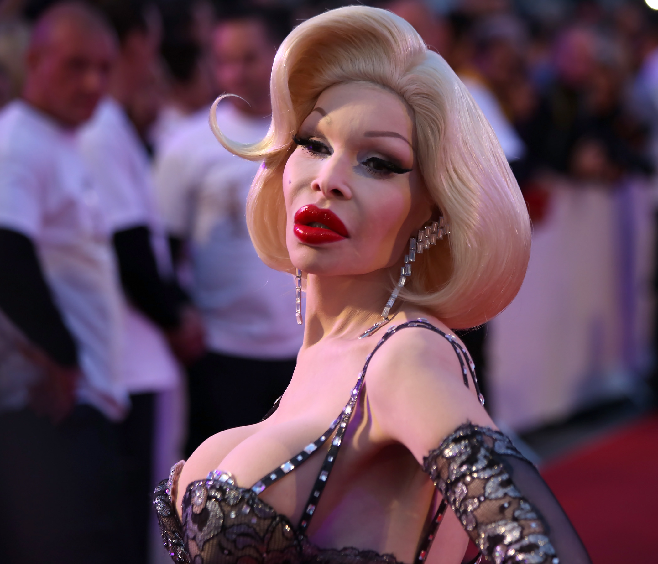 celebs who had gender reassignment